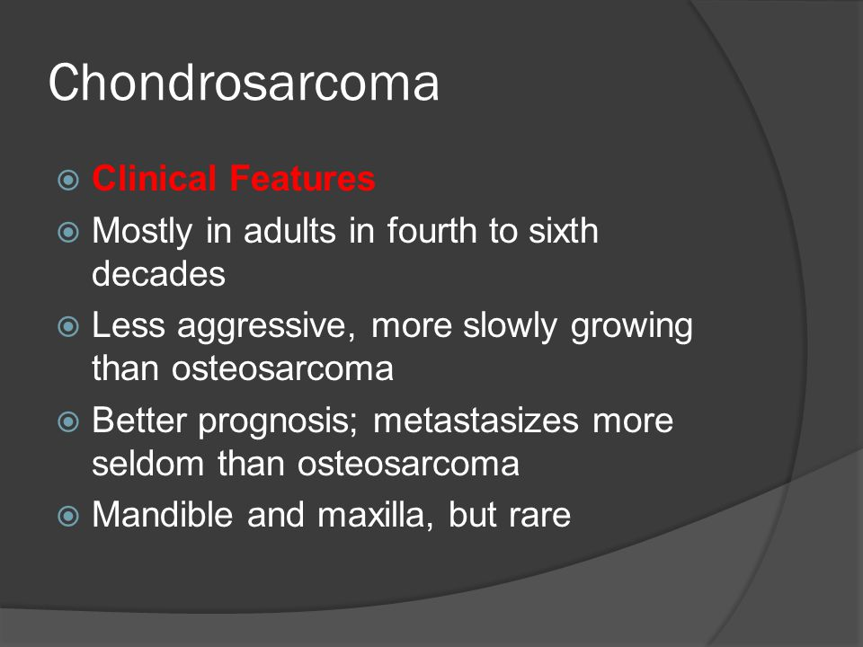 Chondrosarcoma Clinical Features