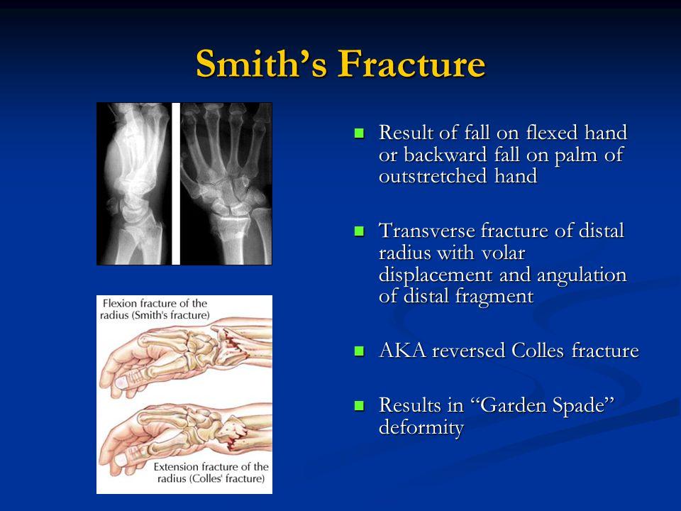 smith fracture garden spade - 960×720