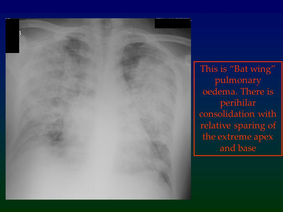 This is Bat wing pulmonary oedema