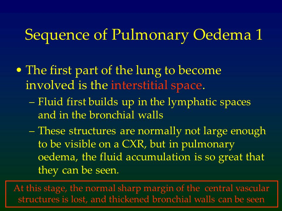 Sequence of Pulmonary Oedema 1