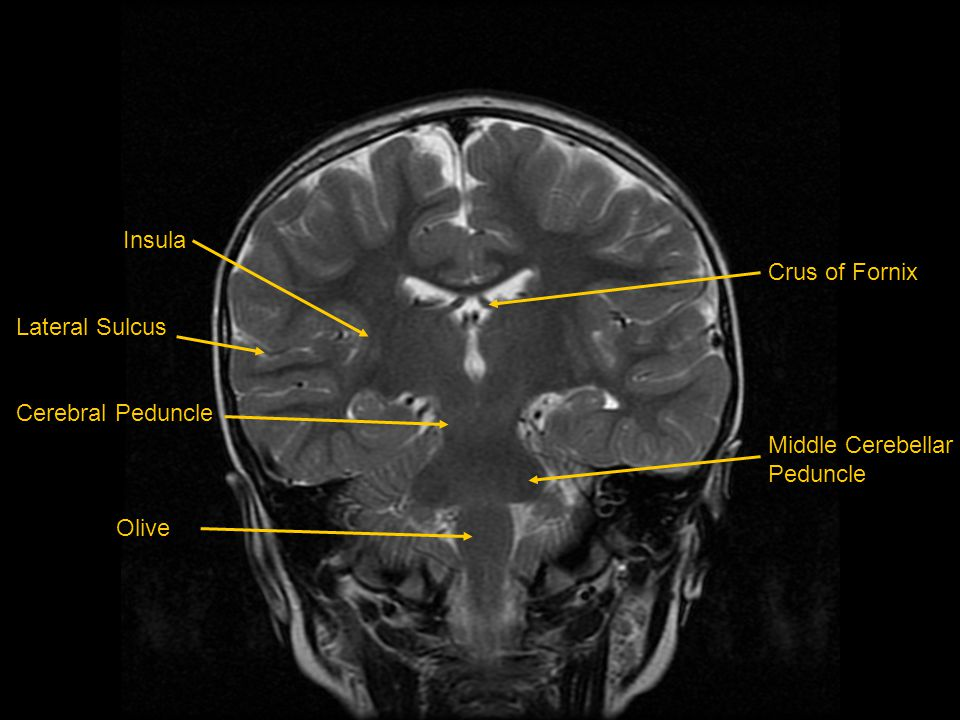 Mri Of Brainhead And Neck Ppt Video Online Download