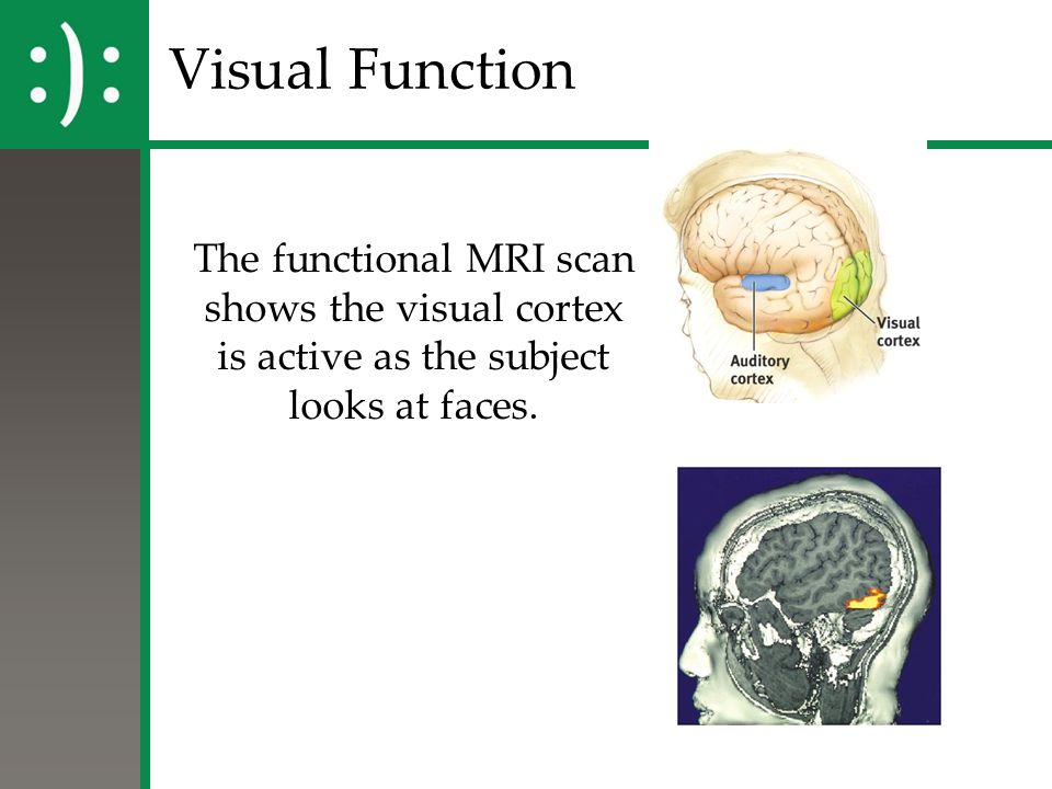 Visual Function The functional MRI scan shows the visual cortex is active as the subject looks at faces.