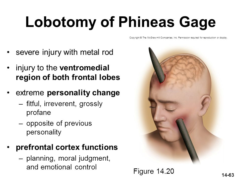 Lobotomy of Phineas Gage