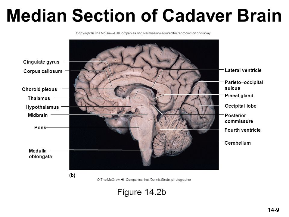 Median Section of Cadaver Brain