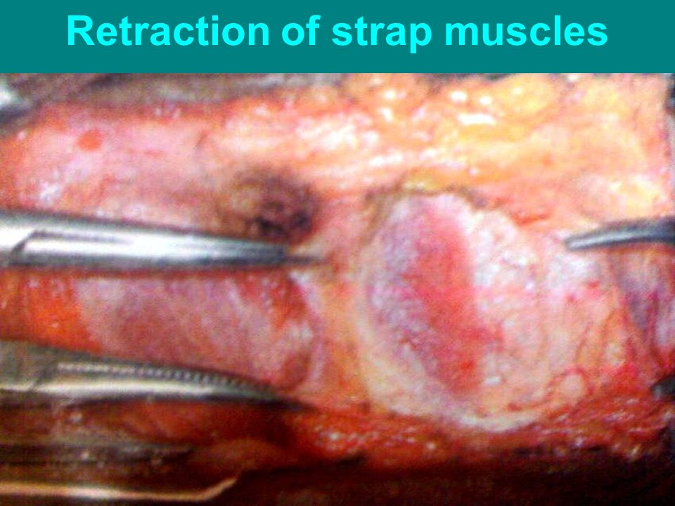 Retraction of strap muscles