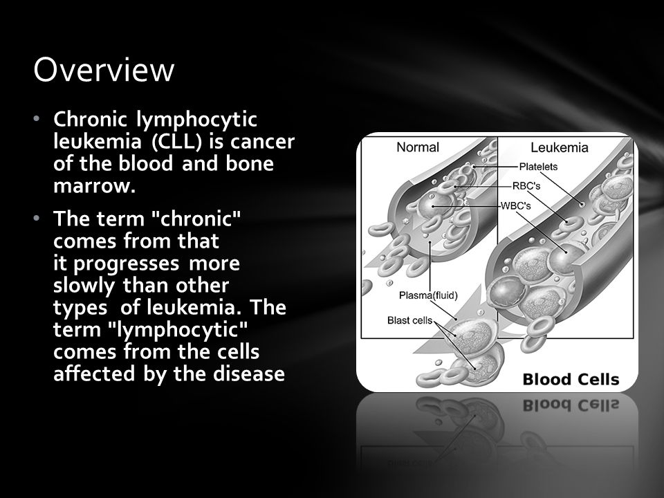 Overview Chronic lymphocytic leukemia (CLL) is cancer of the blood and bone marrow.