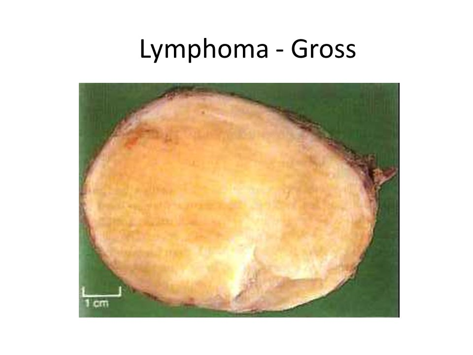 Lymphoma - Gross