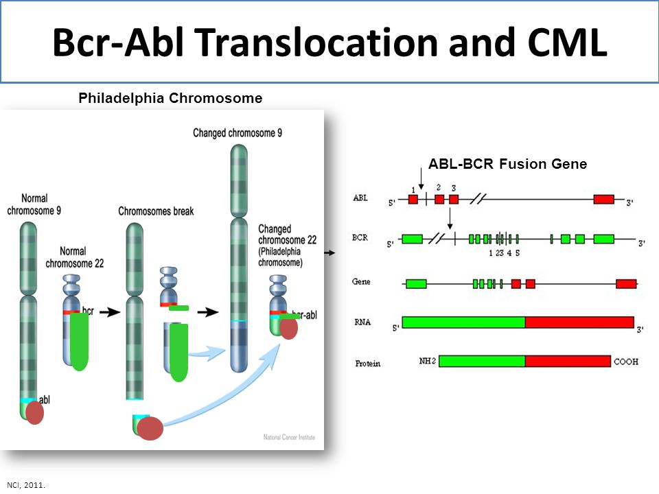 Bcr Abl Translocation And CML