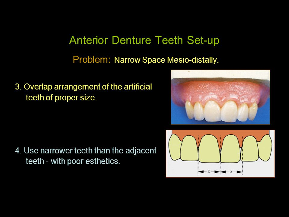 Selection & Arrangement of Teeth for RPD & The Denture Base