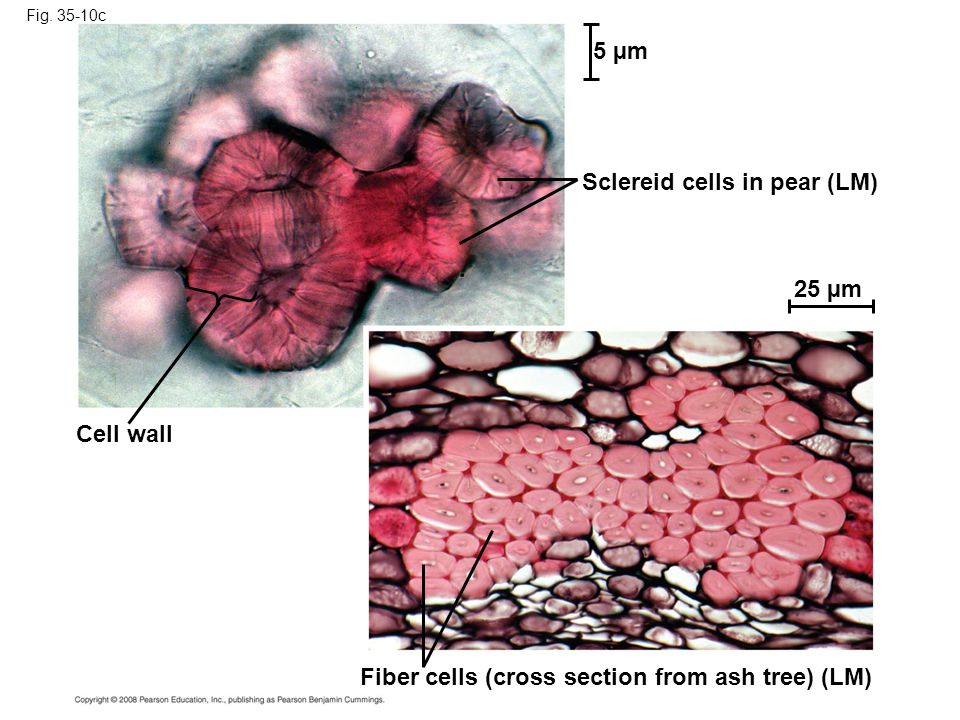 Sclereid cells in pear (LM)