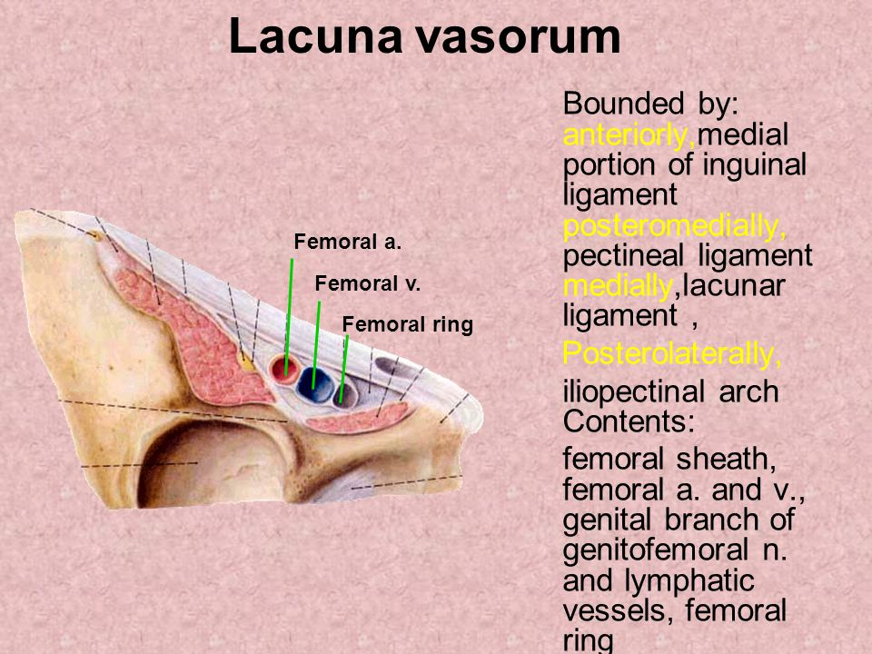 Lacuna vasorum Bounded by: anteriorly,medial portion of inguinal ligament posteromedially, pectineal ligament medially,lacunar ligament ,