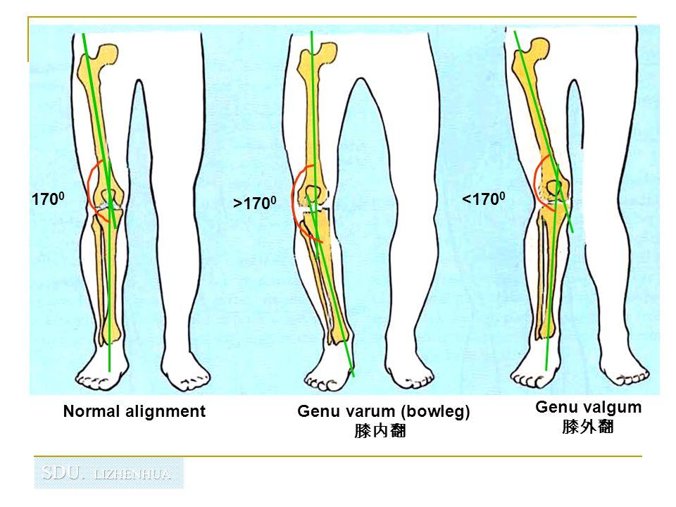 Genu Varum  Physiotherapy Treatment