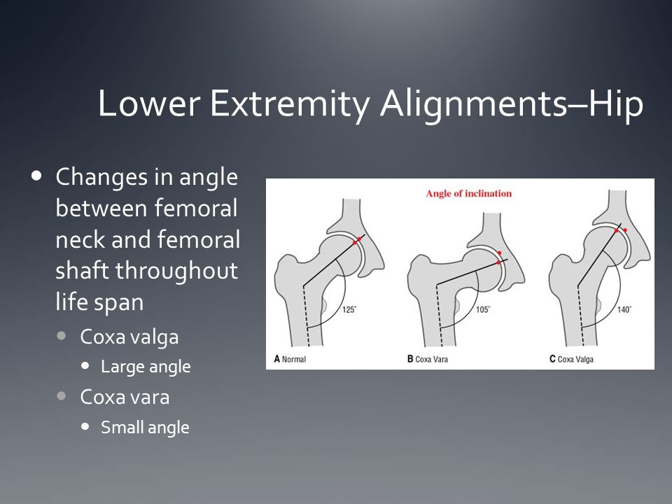 Lower Extremity Alignments–Hip