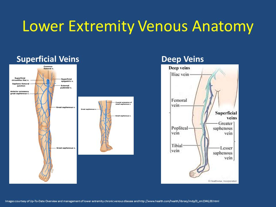 Arterial And Venous Disease Ppt Download
