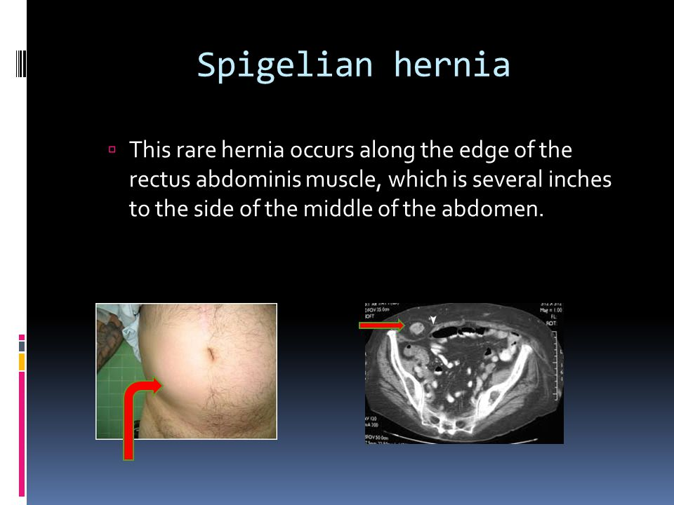 Abdominal Hernia Different Types Of Abdominal External Hernias