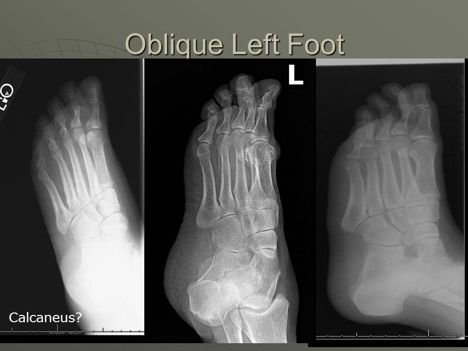 Beautiful Foot X Ray Anatomy Inspiration - Anatomy And Physiology ...