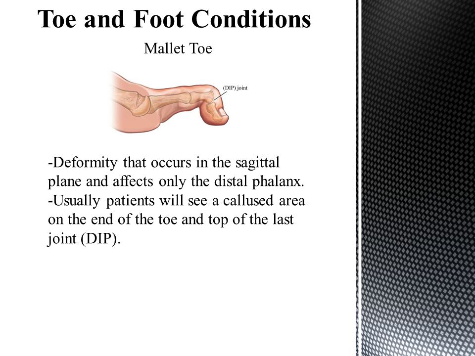 Toe and Foot Conditions