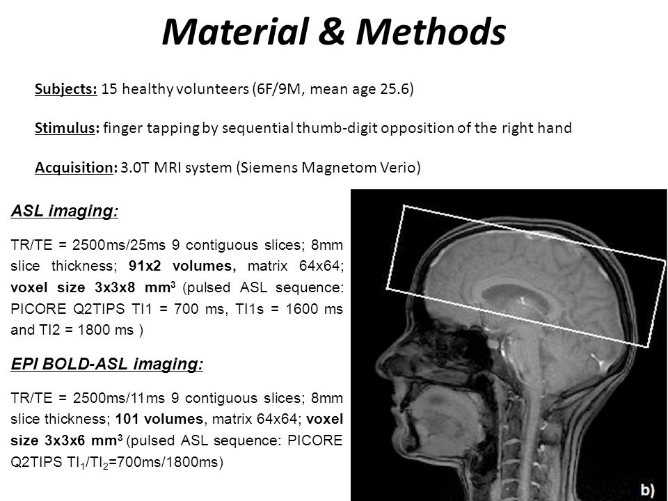 Material & Methods Subjects: 15 healthy volunteers (6F/9M, mean age 25.6)