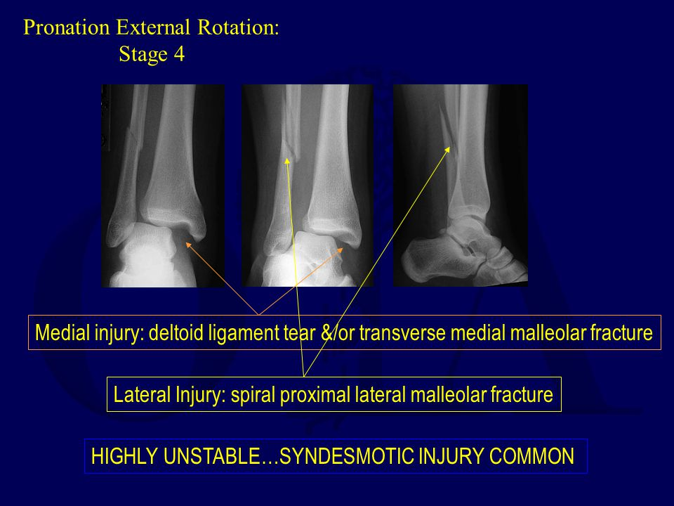 Ankle Fracture Update Ota Resident Core Curriculum Lecture