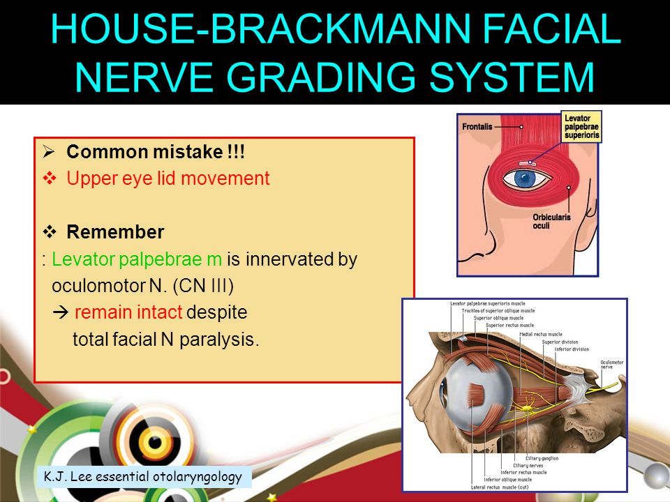Everything. Facial nerve grading system