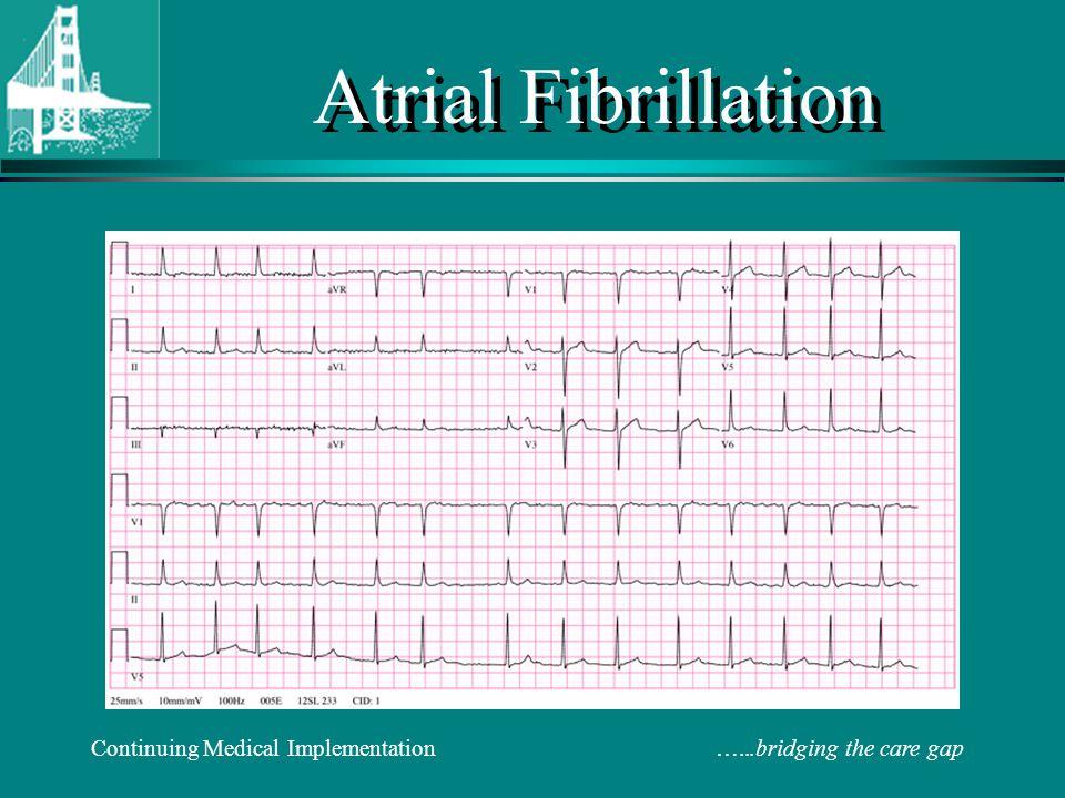 Atrial Fibrillation 2018: Controversy and Consensus