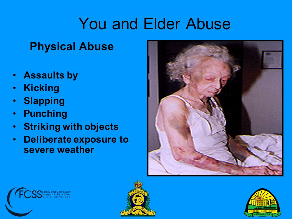You and Elder Abuse Physical Abuse Assaults by Kicking Slapping