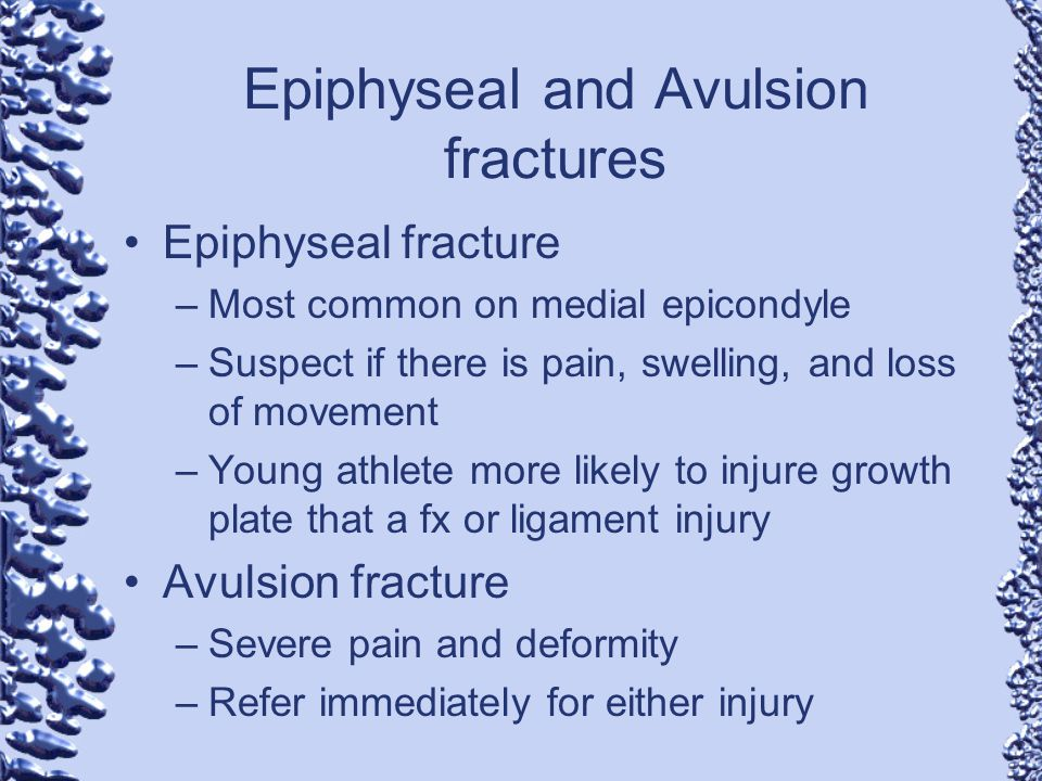 Epiphyseal and Avulsion fractures