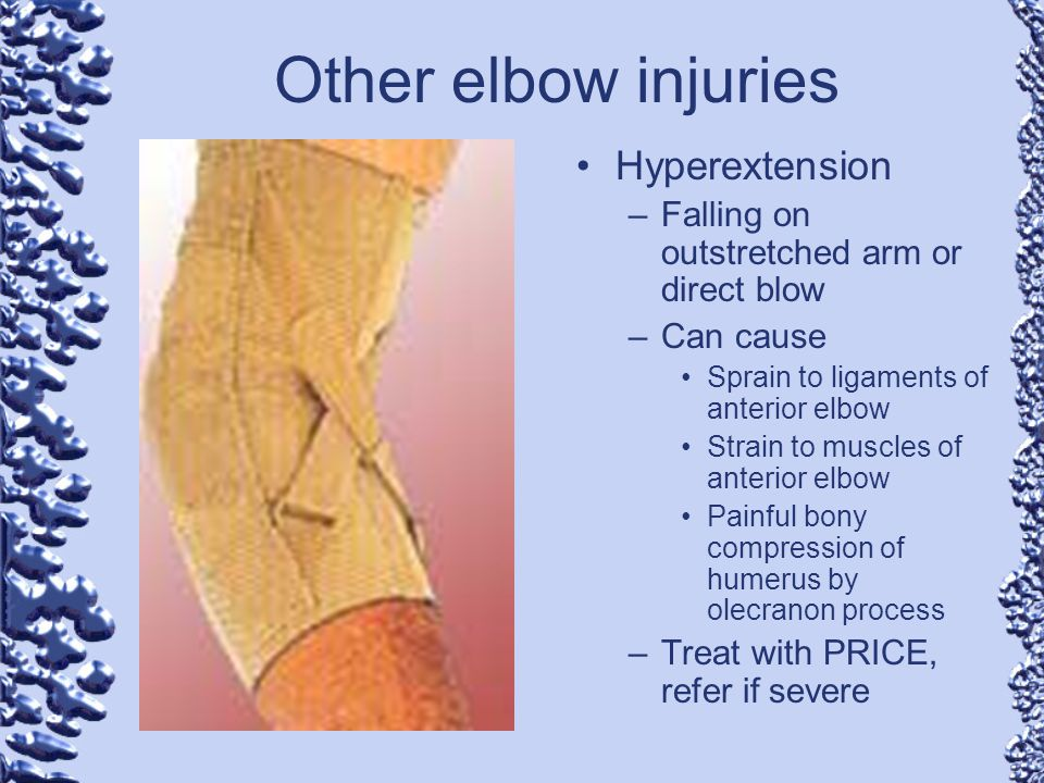 Chapter 11 Elbow Injuries Ppt Video Online Download