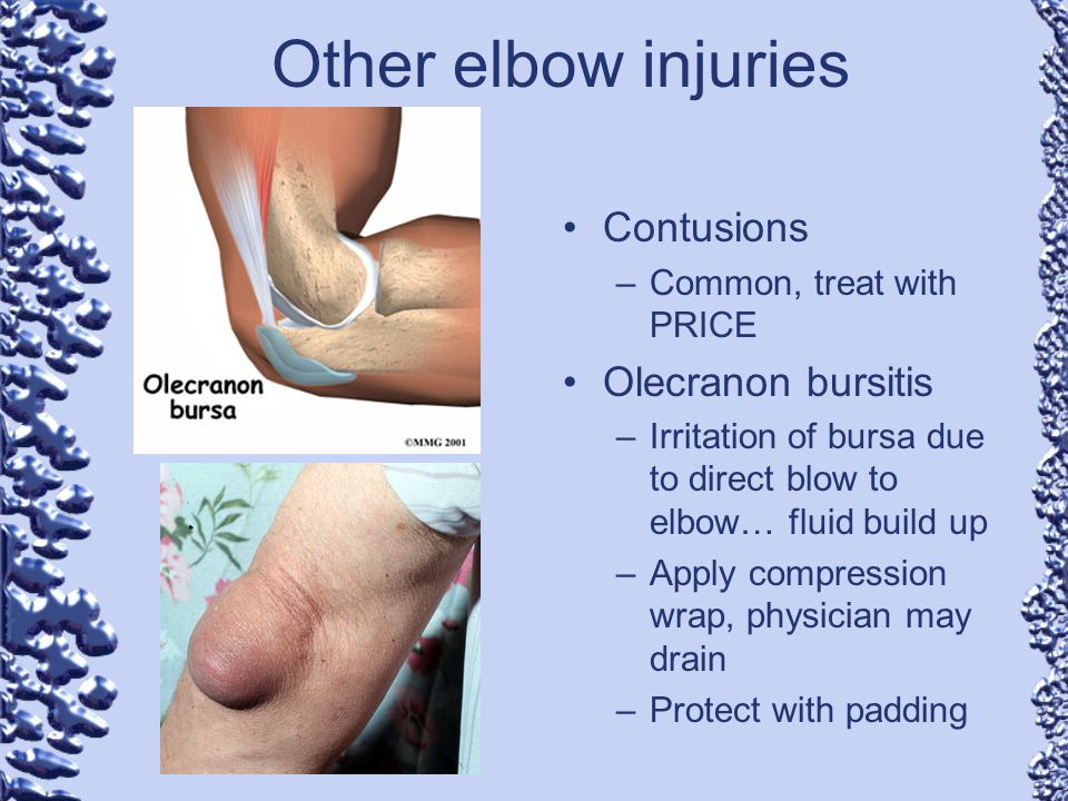 Chapter 11-Elbow Injuries - ppt video online download