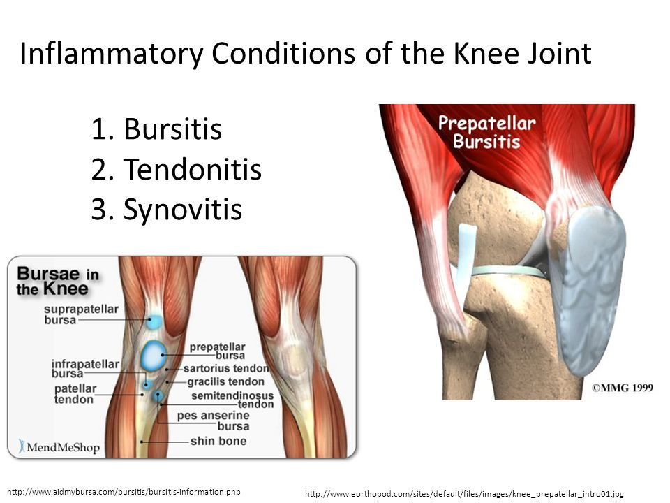 Biomechanics of the Knee - ppt video online download