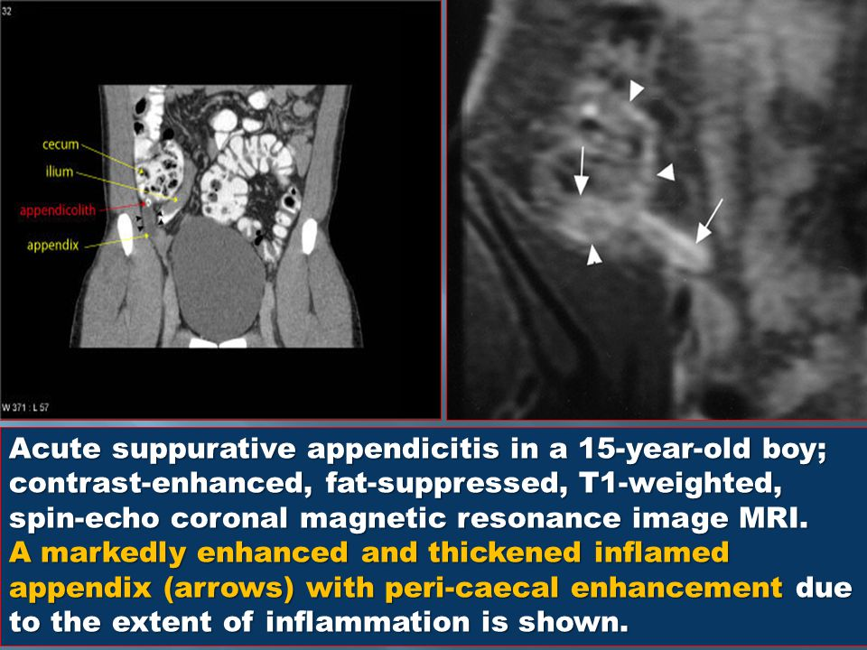 Acute suppurative appendicitis in a 15-year-old boy; contrast-enhanced, fat-suppressed, T1-weighted, spin-echo coronal magnetic resonance image MRI.