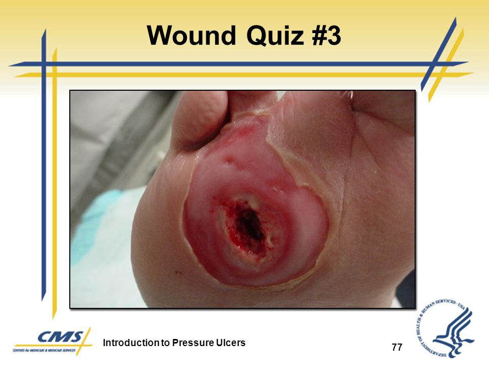 Introduction To Pressure Ulcers Ppt Video Online Download