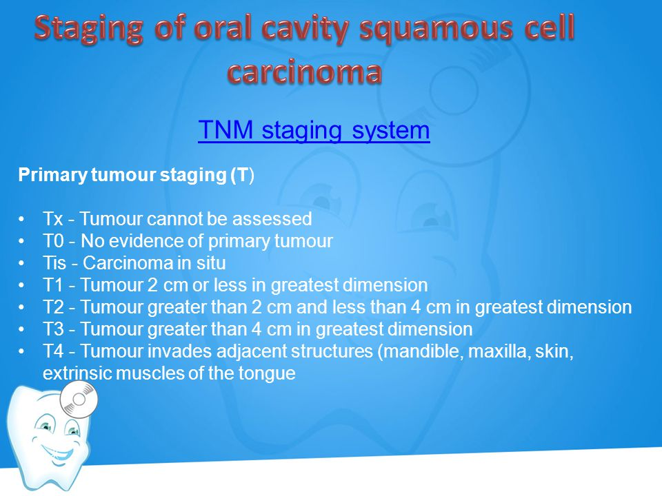 Staging of oral cavity squamous cell carcinoma