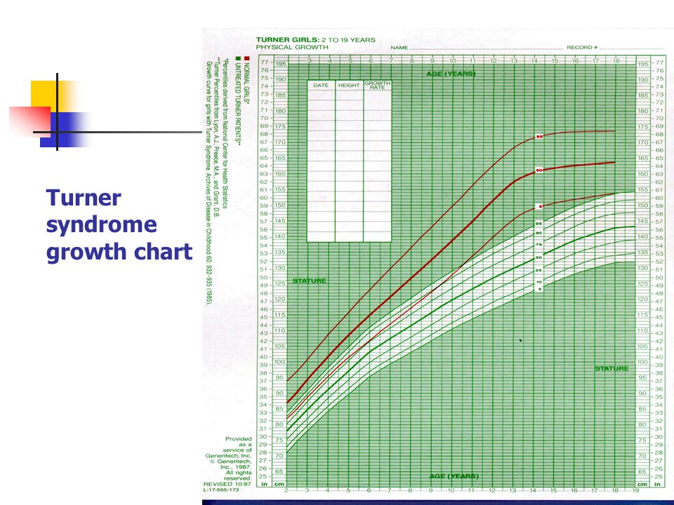 turner syndrome growth chart pdf