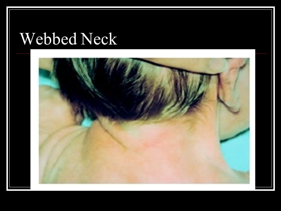 Webbed Neck