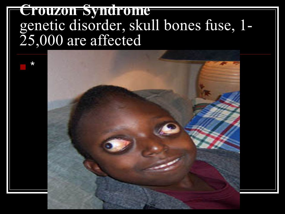 Crouzon Syndrome genetic disorder, skull bones fuse, 1-25,000 are affected