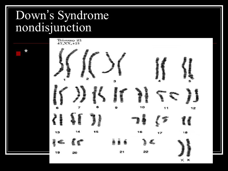 Down's Syndrome nondisjunction