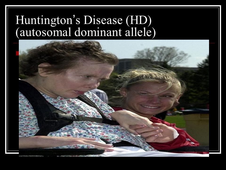 Huntington's Disease (HD) (autosomal dominant allele)
