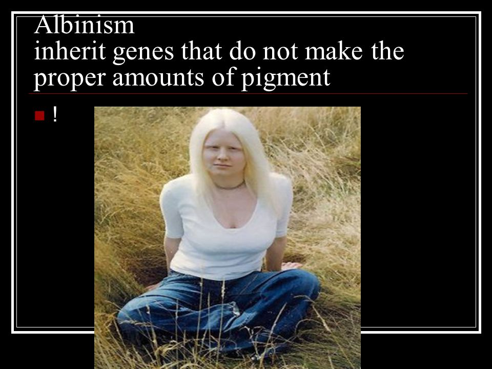Albinism inherit genes that do not make the proper amounts of pigment