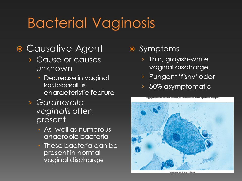 Oral sex linked to vaginal condition bacterial vaginosis
