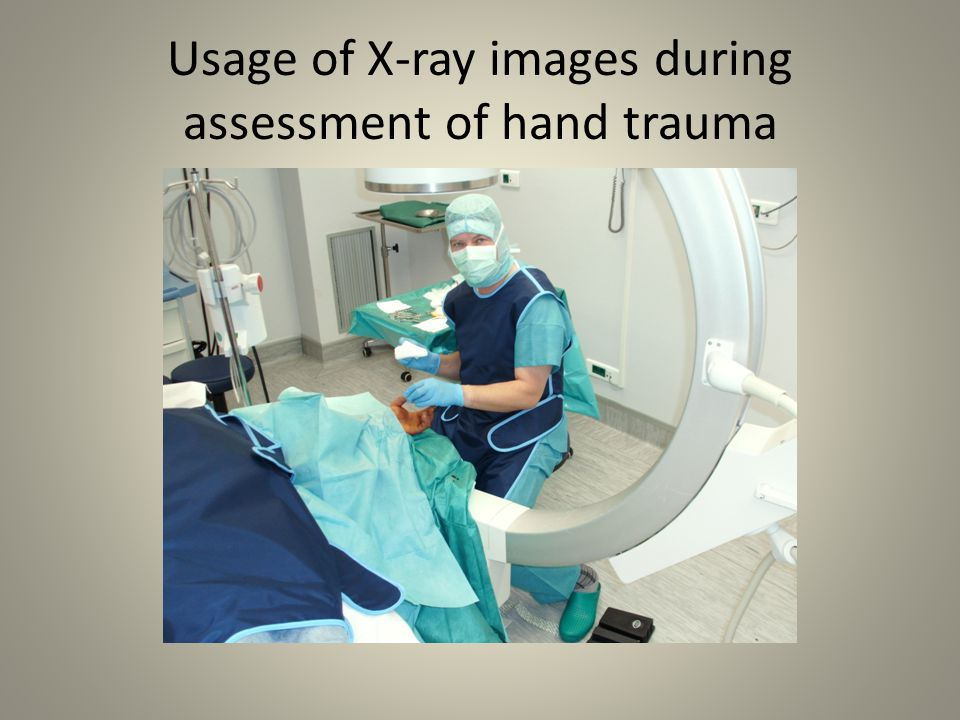 Usage of X-ray images during assessment of hand trauma
