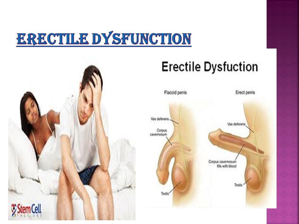 how to fix erectile dysfunction from antidepressants