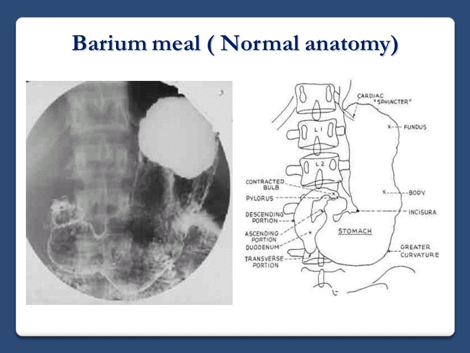 Fluoroscopic investigations of the gastrointestinal tract ppt 30 barium meal normal anatomy ccuart Choice Image