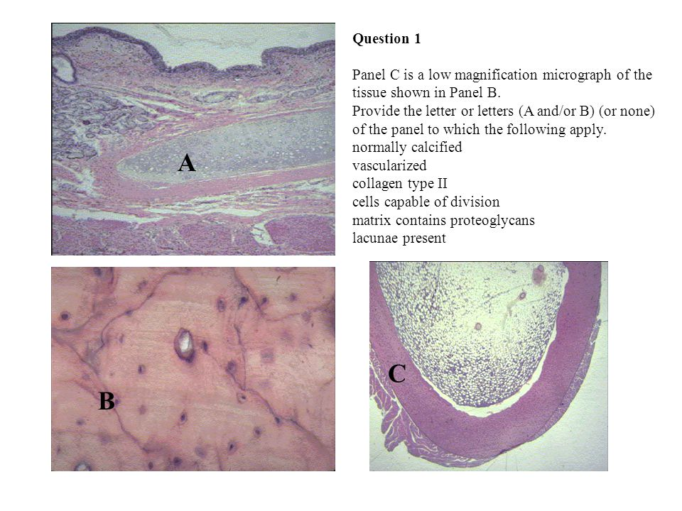Question 1 Panel C is a low magnification micrograph of the tissue shown in Panel B.