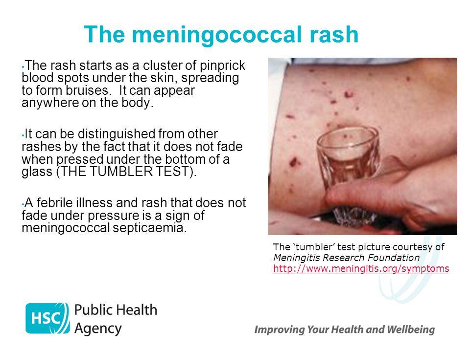 viral-meningitis-symptoms-in-adults-erected-penis-blow-job-liking