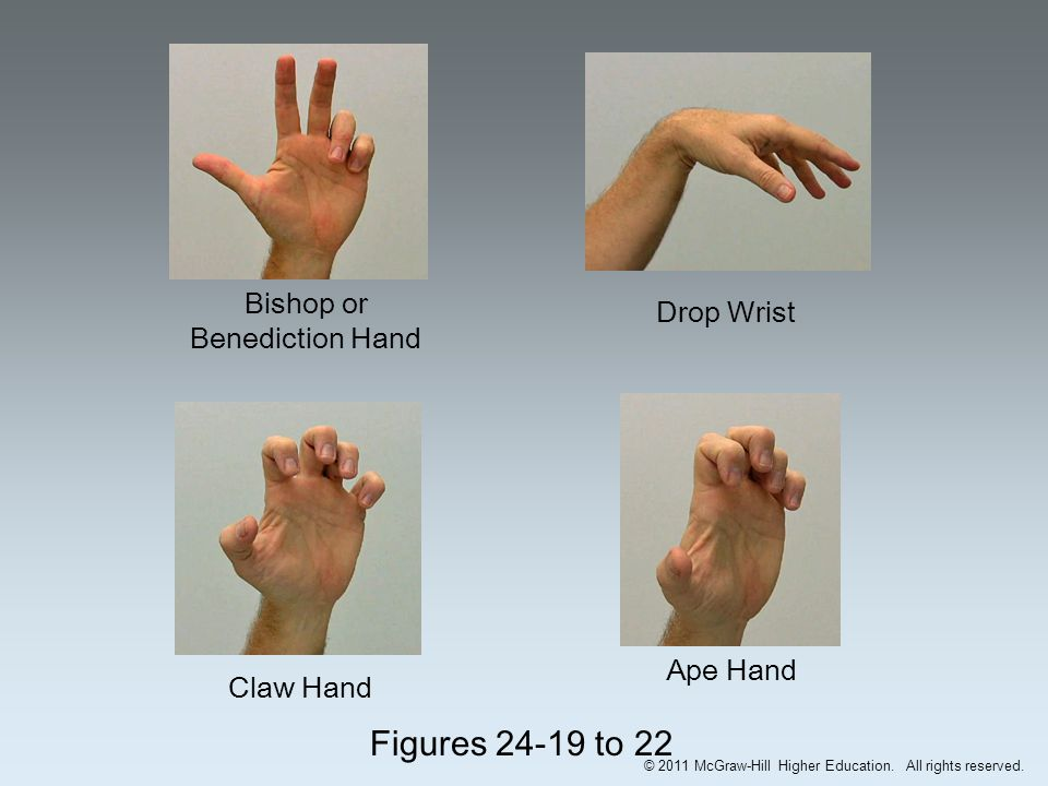 Chapter 24 The Forearm Wrist Hand And Fingers Ppt Download