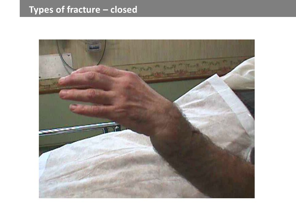 The broken bone does not puncture the skin - ppt video ...