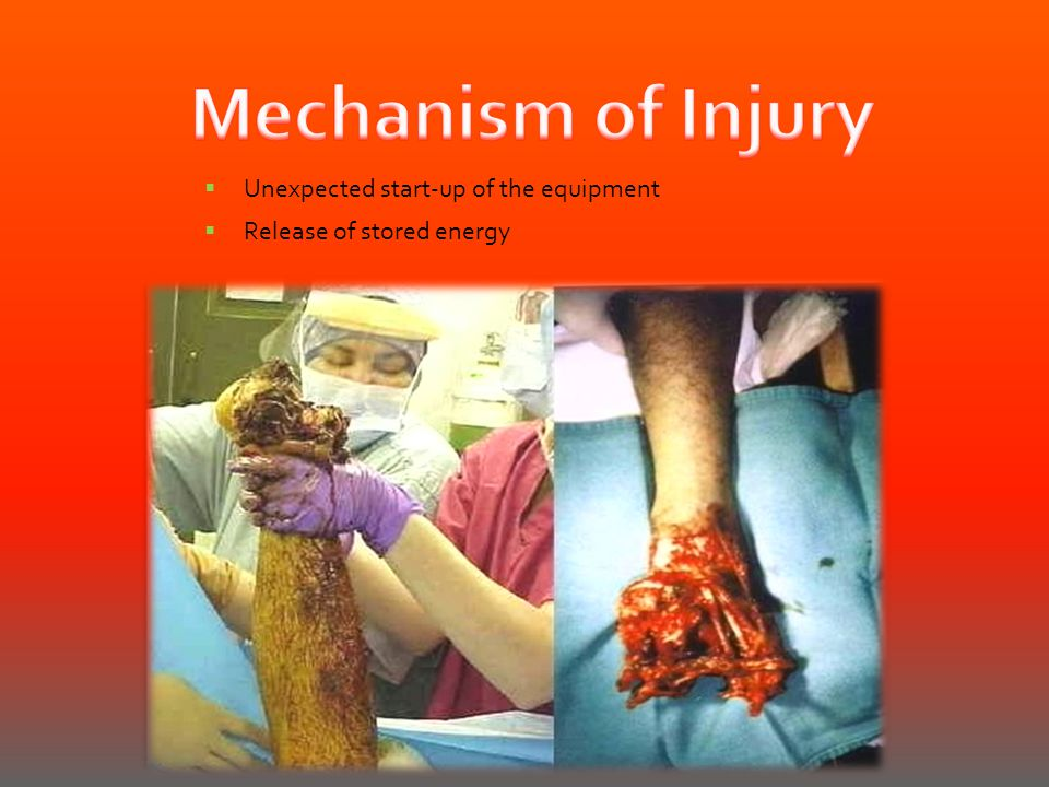 Mechanism of Injury Unexpected start-up of the equipment