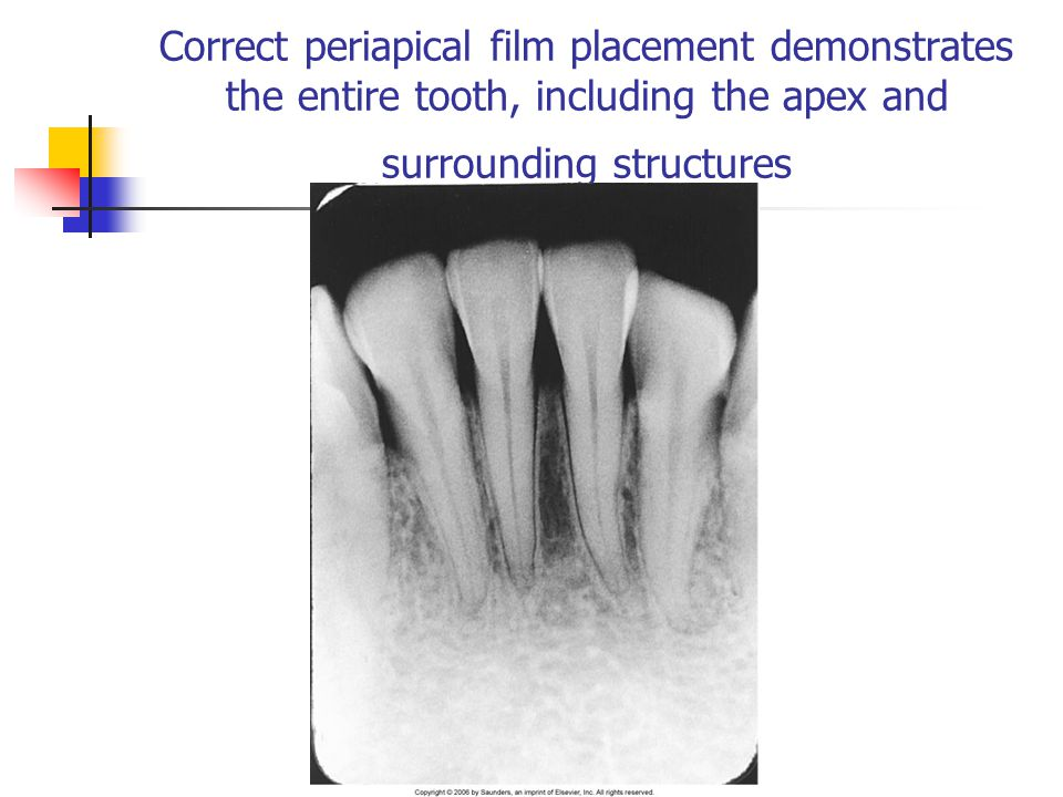 Correct periapical film placement demonstrates the entire tooth, including the apex and surrounding structures