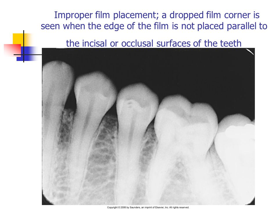 Improper film placement; a dropped film corner is seen when the edge of the film is not placed parallel to the incisal or occlusal surfaces of the teeth